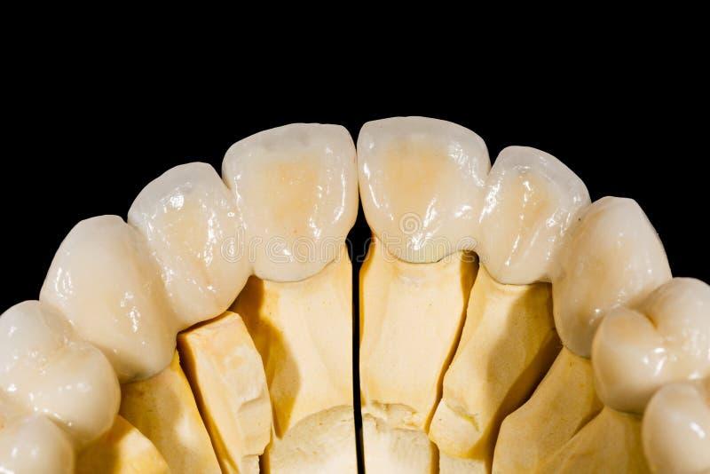 Passerelle en céramique dentaire photos stock