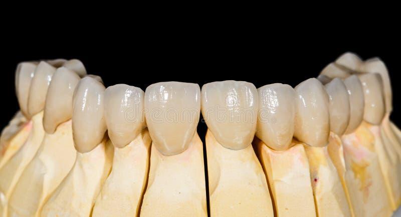 Passerelle en céramique dentaire photo libre de droits