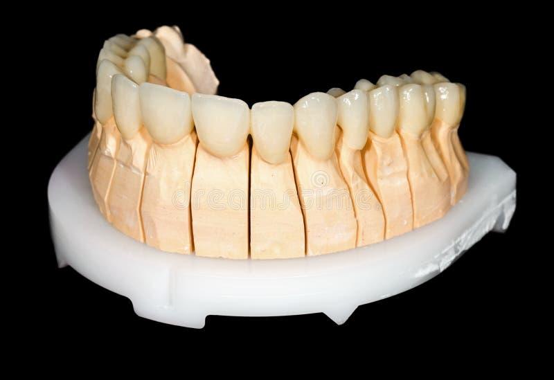Passerelle en céramique dentaire images stock