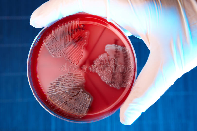 Pathological bacteria stock photo