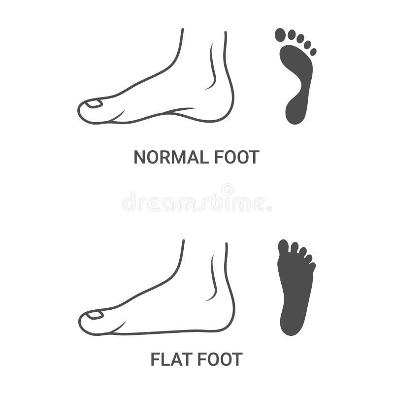 Pathologies de pied, pied normal et plat d'isolement sur un fond blanc Illustration de vecteur illustration libre de droits