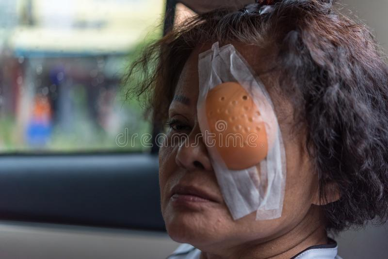 Patient asian women show her eyes with eye shield. Patient asian elder woman 60s with black hair and wrinkled on face show her eyes with eye pad and eye shield royalty free stock photos
