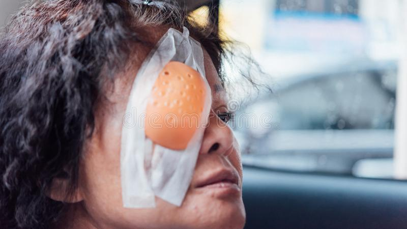 Patient asian women show her eyes with eye shield. Patient asian elder woman 60s with black hair and wrinkled on face show her eyes with eye pad and eye shield royalty free stock photo
