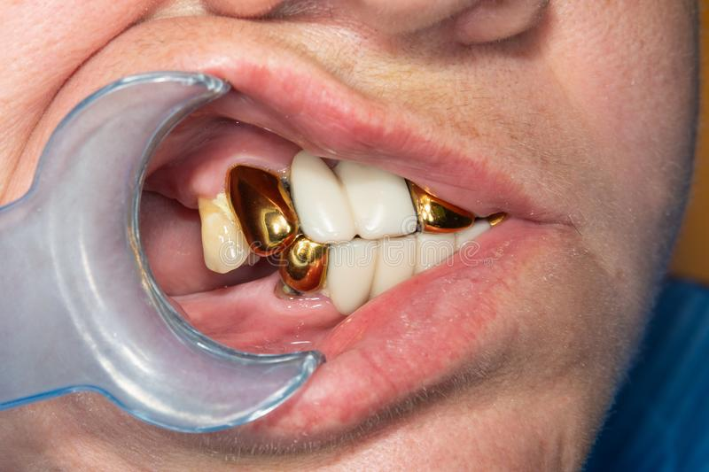 Patient with bad metal dental crowns close-up. The concept of treatment and restoration of aesthetics in the dental clinic stock photo