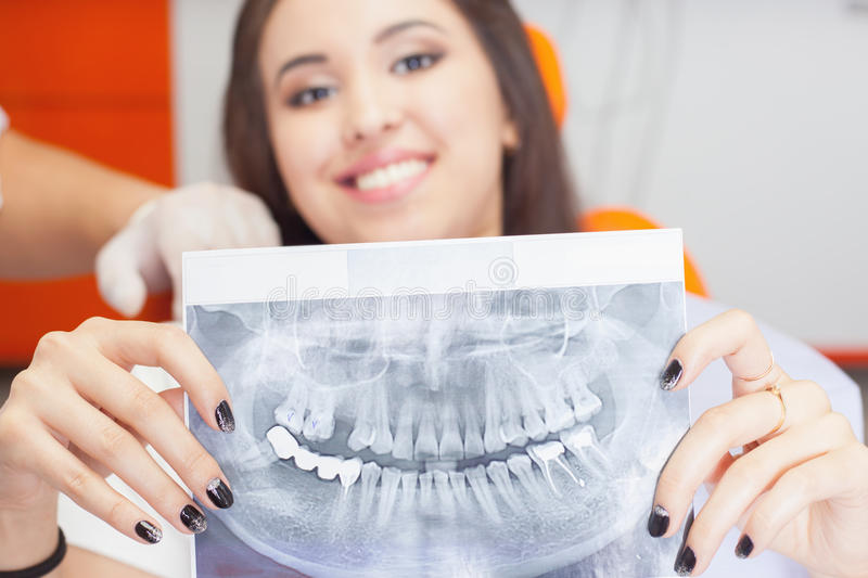 Patient beautiful girl holding x-ray picture of her teeth royalty free stock photos