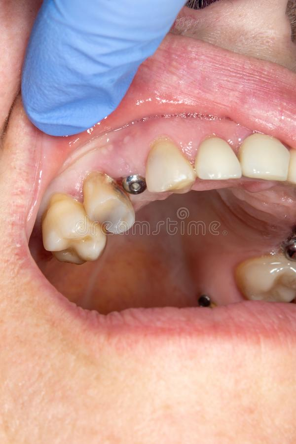 Patient för wort för tand- implantat för närbild i en tand- klinik under behandling Begreppet av kirurgisk estetisk tandläkekonst royaltyfri fotografi