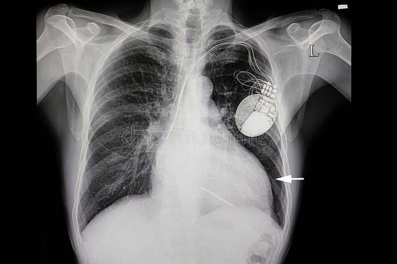 A patient with heart enlargement and a cardiac pacemaker. Xray film of a patient with heart enlargement & x28;white arrow& x29; and an early pulmonary edema. He stock photo