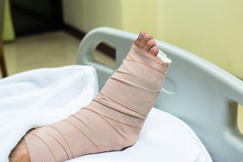 Patient mit dem gebrochenen Bein in der Form und im Verband stockbilder