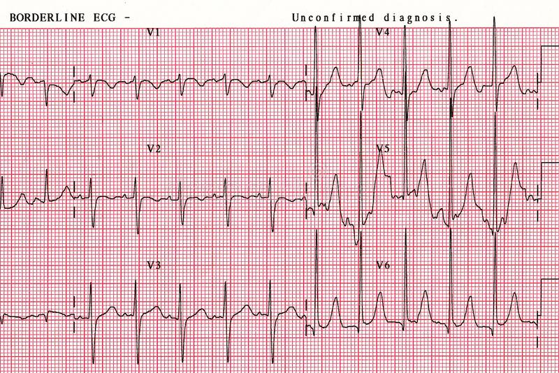 Patient`s heart wave chart, which is a tool to help physicians analyze data in hospitals. EKG report Paper. Closed-up. Top view stock photo