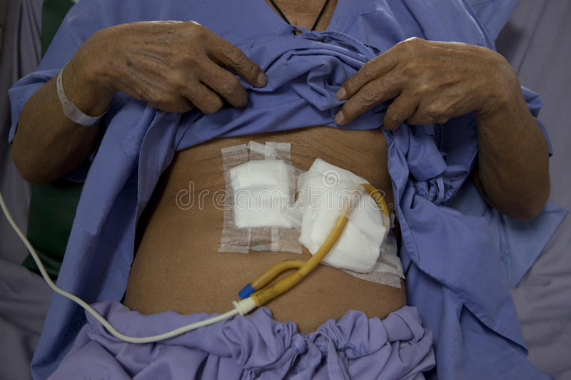 Patient show tube on stomach for feeding food stock photo