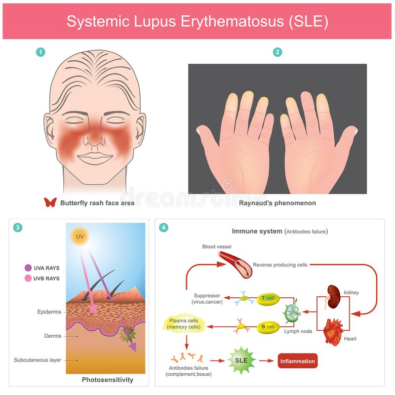 Systemic Lupus Erythematosus SLE. The patients skin inflammation from the light. Illustration. stock illustration