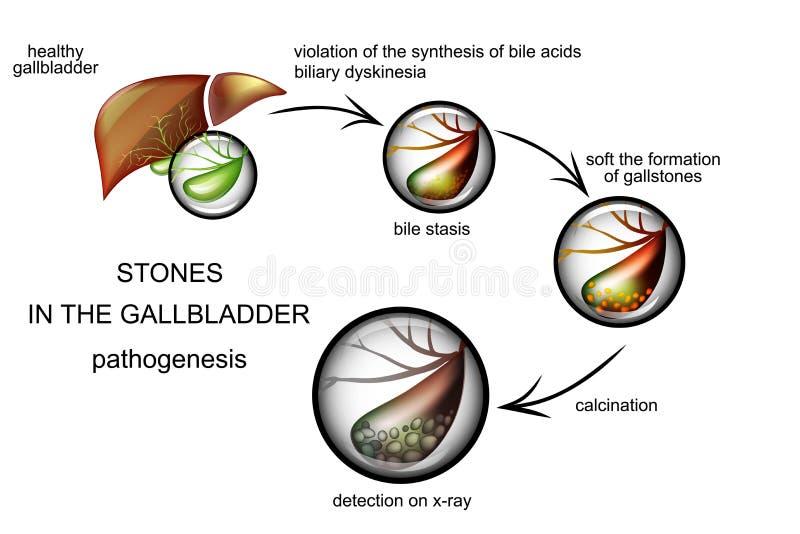 A patogênese dos cálculos biliares ilustração royalty free