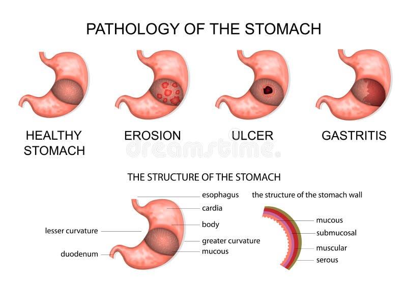 Patología del estómago ilustración del vector