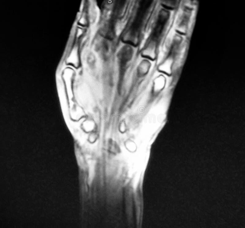 Fantástico Abdomen Anatomía Mri Regalo - Imágenes de Anatomía Humana ...