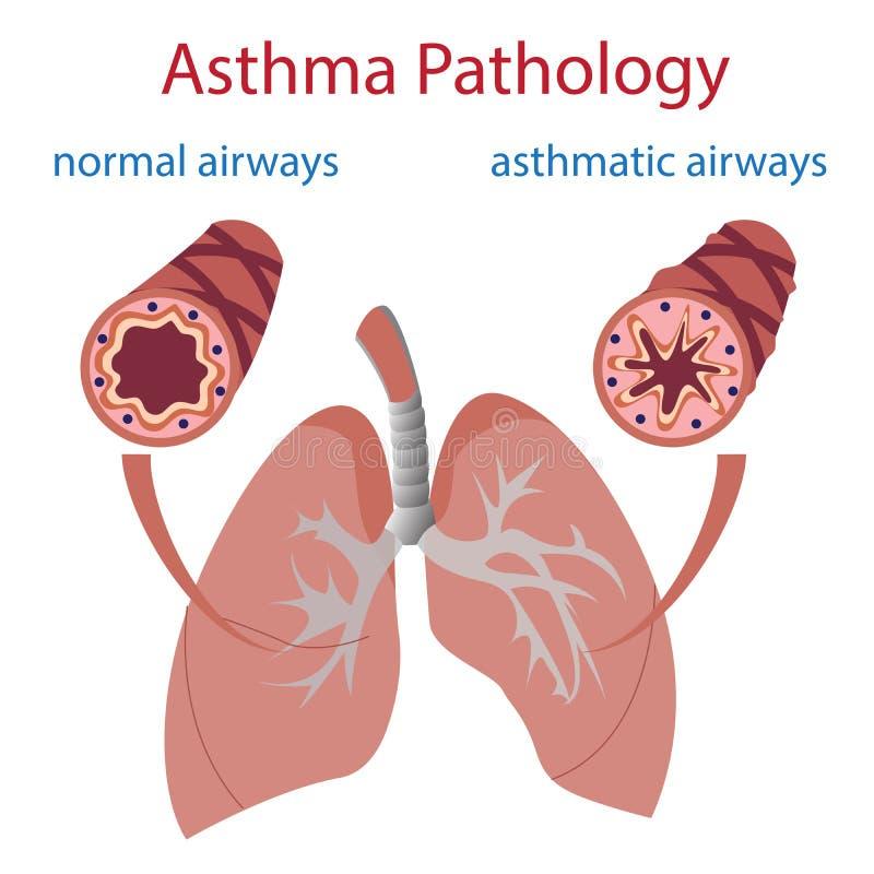 Patologia da asma ilustração royalty free