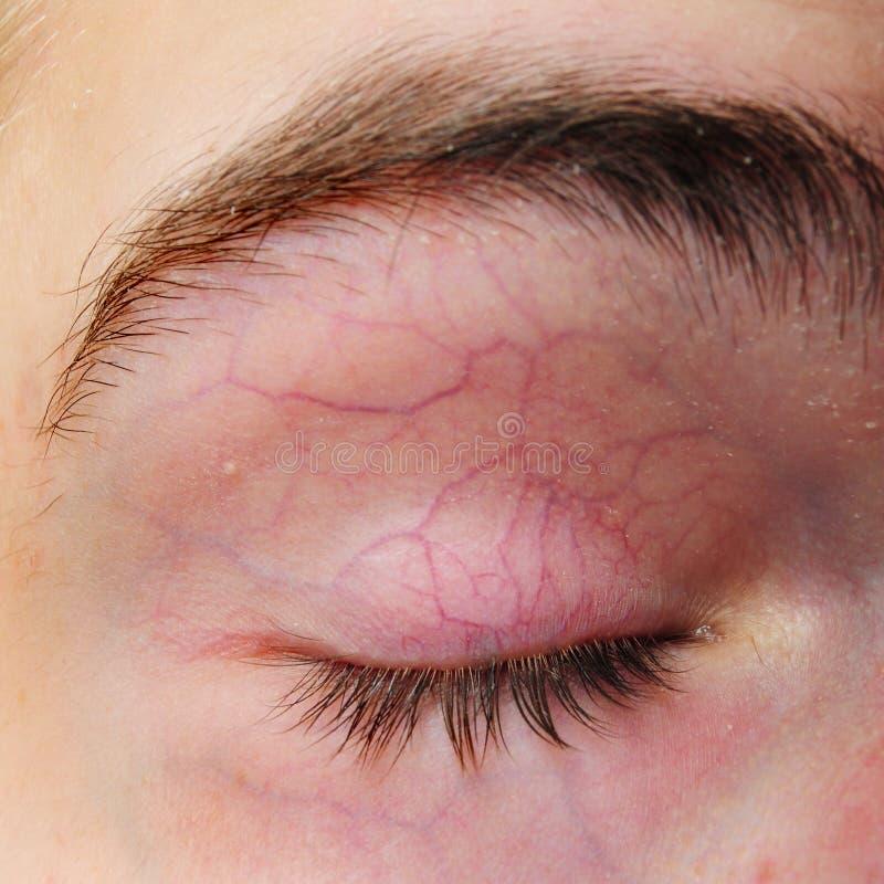 Paupière avec des veines de vaisseaux sanguins image stock