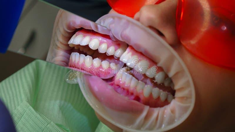 Paziente della ragazza in clinica dentaria immagine stock