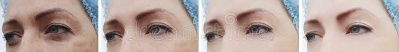 Paziente di rigenerazione delle grinze del fronte della donna prima e dopo ringiovanimento di trattamento di cosmetologia immagine stock libera da diritti