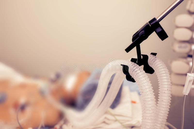 Paziente sulla ventilazione polmonare artificiale fotografie stock libere da diritti