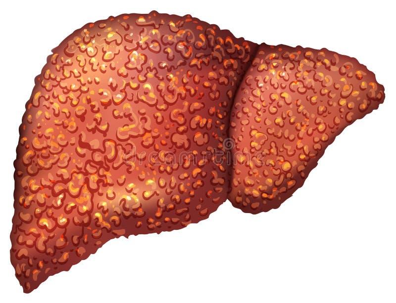 Pazienti del fegato con epatite Il fegato è persona malata Cirrosi di fegato Alcolismo di ripercussione illustrazione di stock