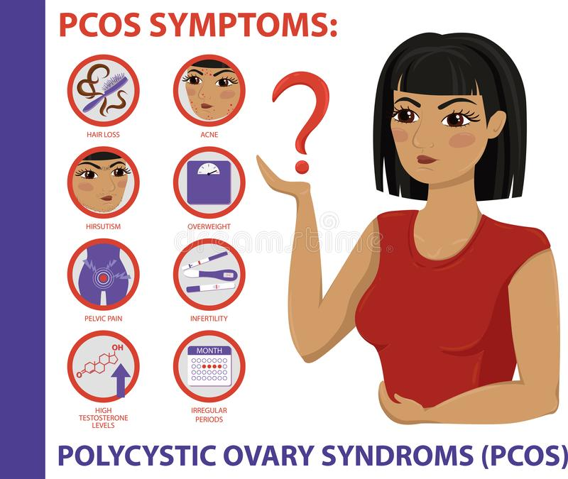 PCOS Symptoms infographic. Women Health. PCOS Symptoms infographic. Polycystic ovary syndrome. Detailed vector Infographic. Women Health stock illustration