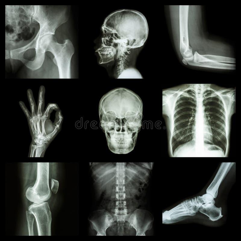 Peça do raio X da coleção do ser humano fotografia de stock