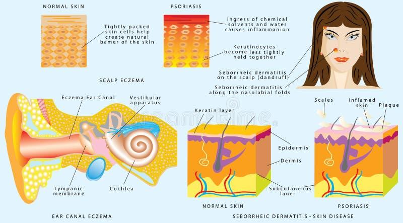 Dermatite ou eczema illustration de vecteur. Illustration