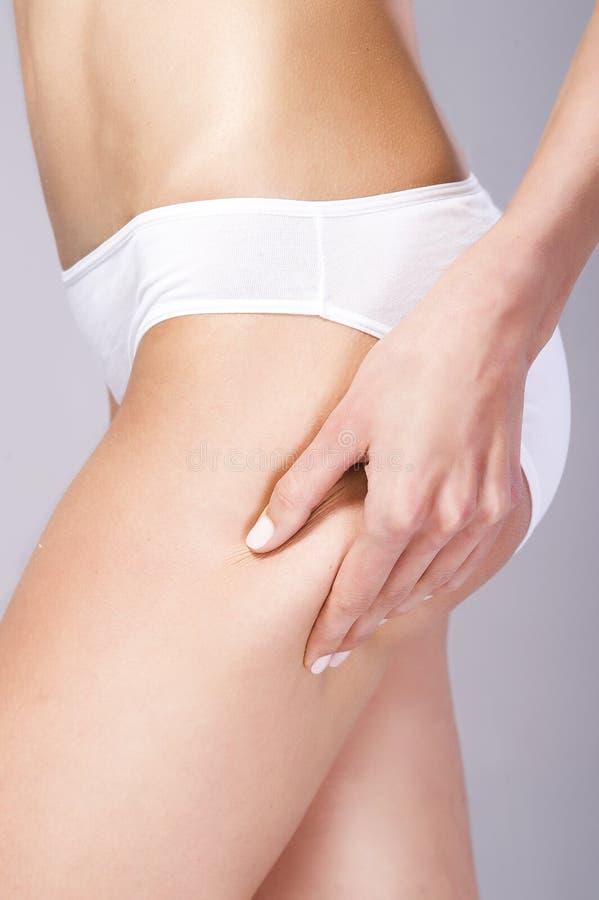 Peau de serrage femelle de cellulites photo stock