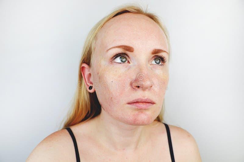 Peau huileuse et de problème Portrait d'une fille blonde avec l'acné, la peau huileuse et la pigmentation image stock