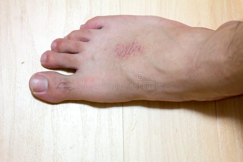 Peau sèche et éruption cutanée au pied mâle sur fond de bois image libre de droits
