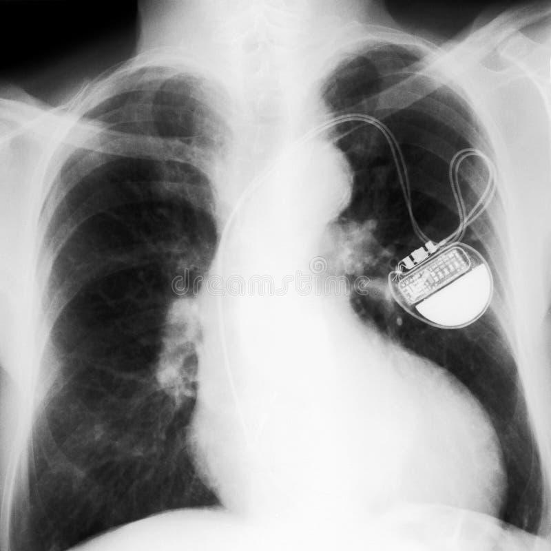 Pecho radiografiado imagen de archivo