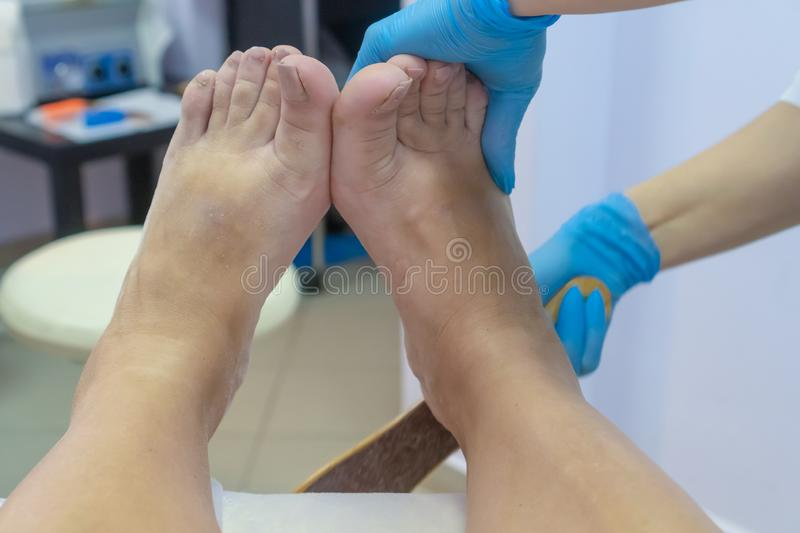 Pedicure process. Terribly scary nails. Foot fungus royalty free stock images