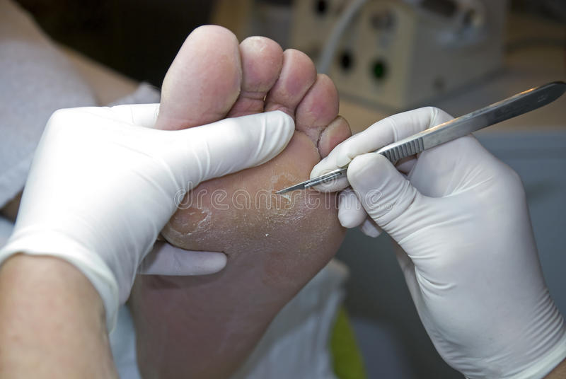 Download Pedicure Removing Hard Skin. Stock Image - Image: 12236775