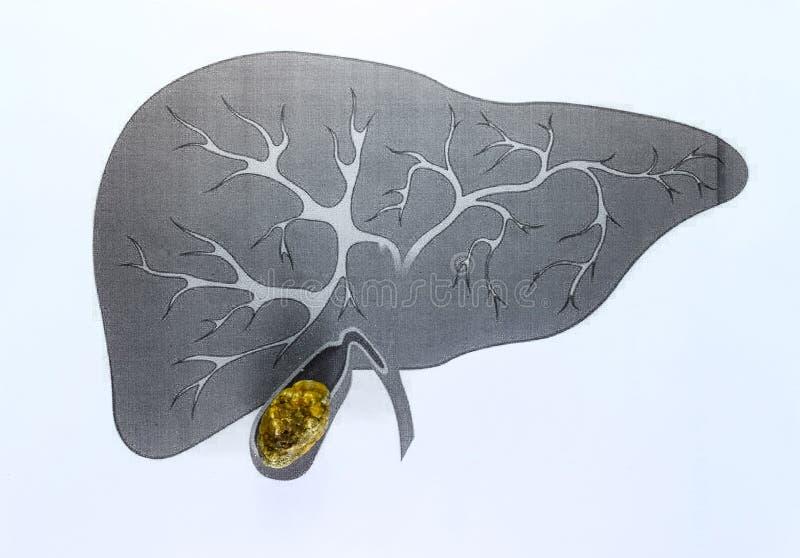 Pedra de bexiga da bílis, descrição esquemática, grande - cálculo biliar feito sob medida, resultado da doença do cálculo biliar imagens de stock