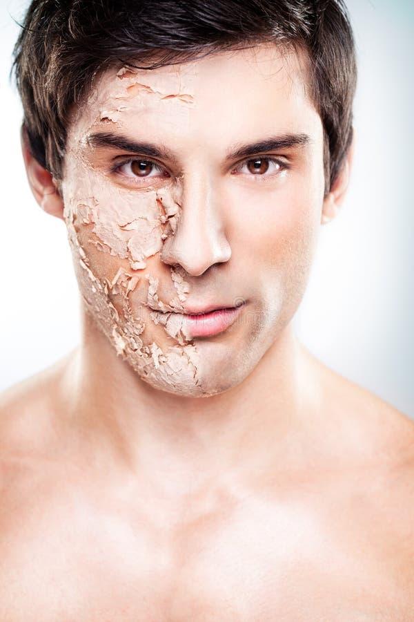 Peeling Skin royalty free stock photos