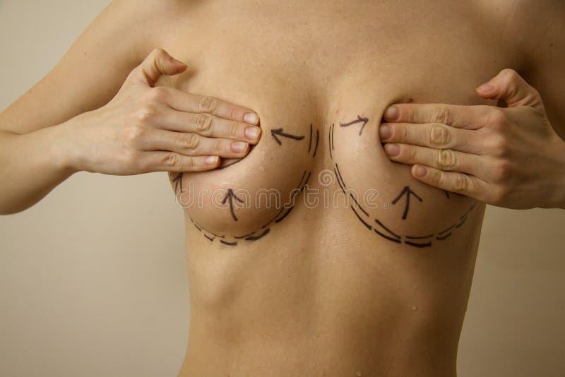 Peitos com linhas 8 da cirurgia fotos de stock