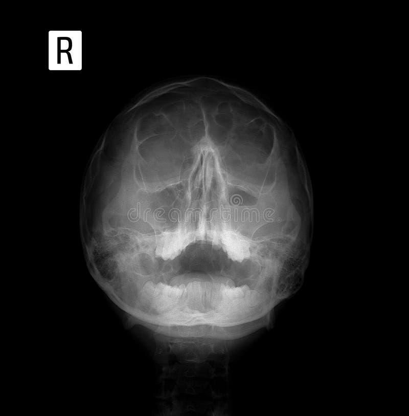 Película De Radiografía De La Cara - Frontal, Proyección De La Nariz ...