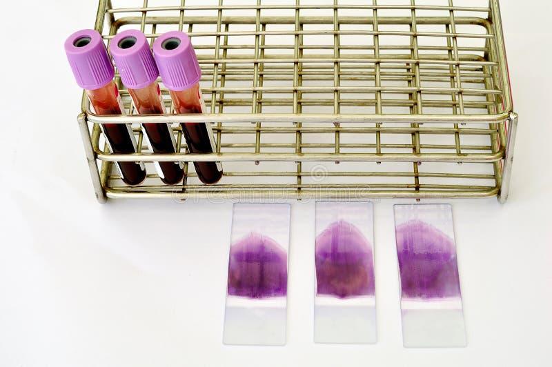 Película de sangre fotos de archivo