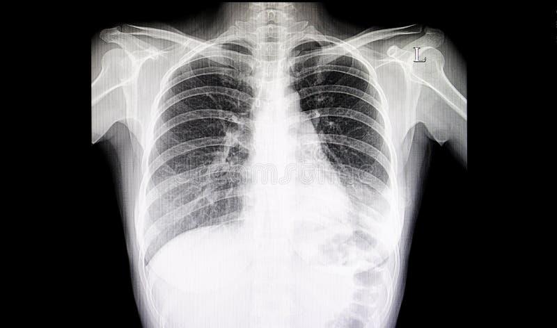 Película del pecho de la pulmonía fotografía de archivo