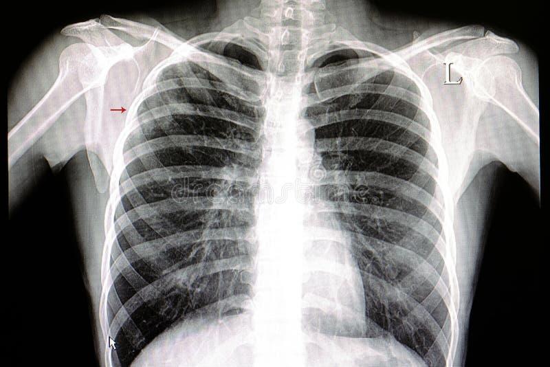 Película del pecho de la pulmonía foto de archivo libre de regalías