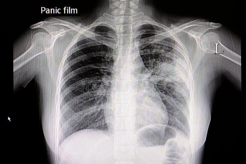 Película del pecho de Xpneumonia foto de archivo libre de regalías