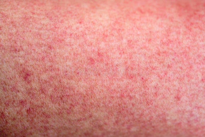 Pele com os pruridos do vermelho da febre de dengue fotografia de stock