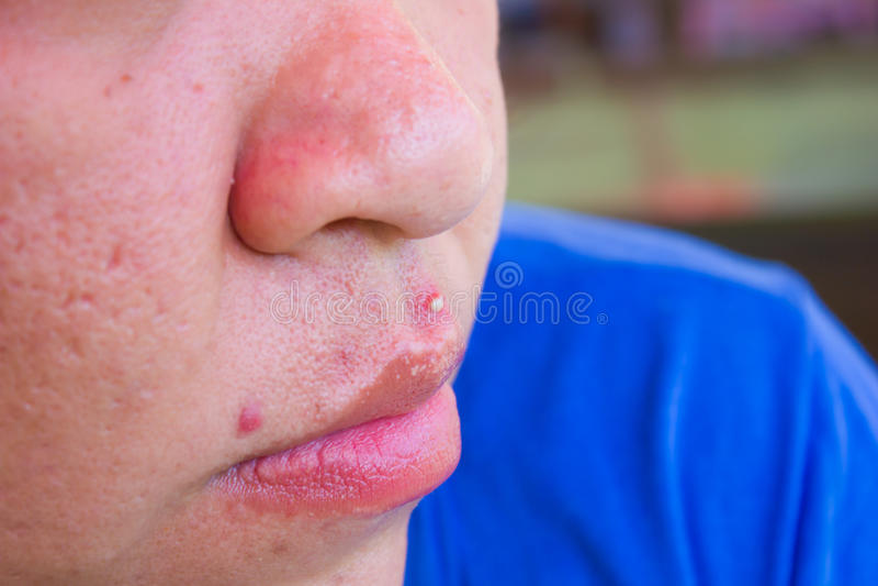 Pele da acne fotografia de stock royalty free