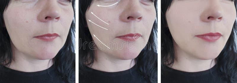 A pele da cara da mulher enruga a diferença de levantamento da remoção do rejuvenescimento do procedimento do resultado antes e d fotos de stock