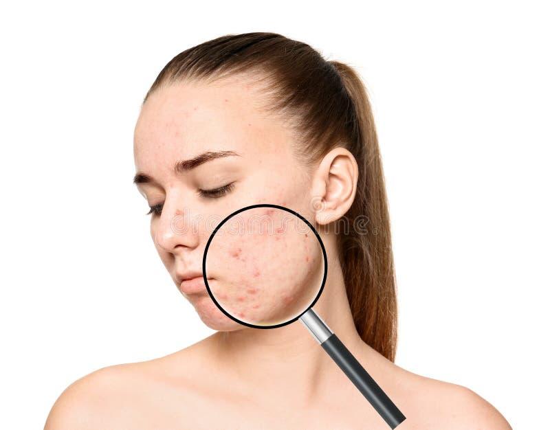 Pele de ampliação do ` s da jovem mulher com problema da acne imagens de stock royalty free