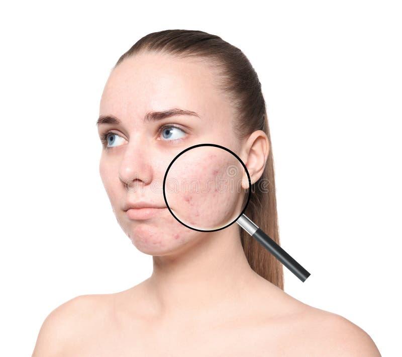 Pele de ampliação do ` s da jovem mulher com problema da acne imagem de stock