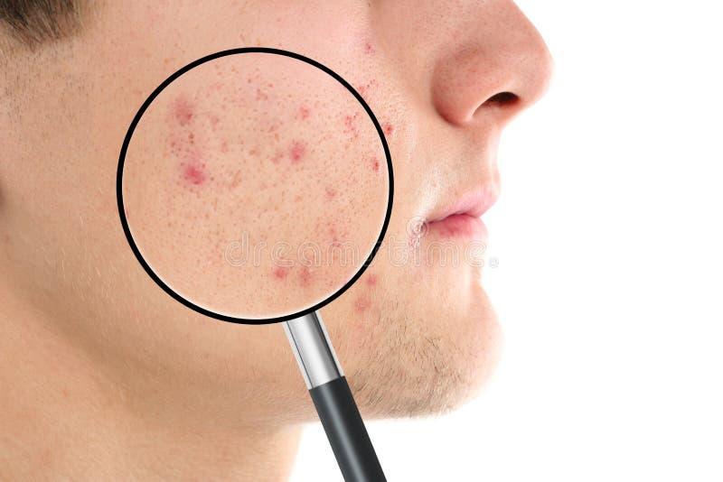 Pele de ampliação do ` s do homem novo com problema da acne imagens de stock