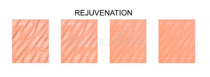 Pele mole rejuvenation ilustração stock