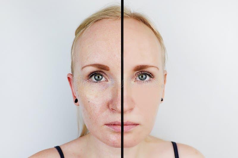 Pele oleosa e pele clara Duas fotos antes e depois Retrato de uma menina com pele do problema fotos de stock