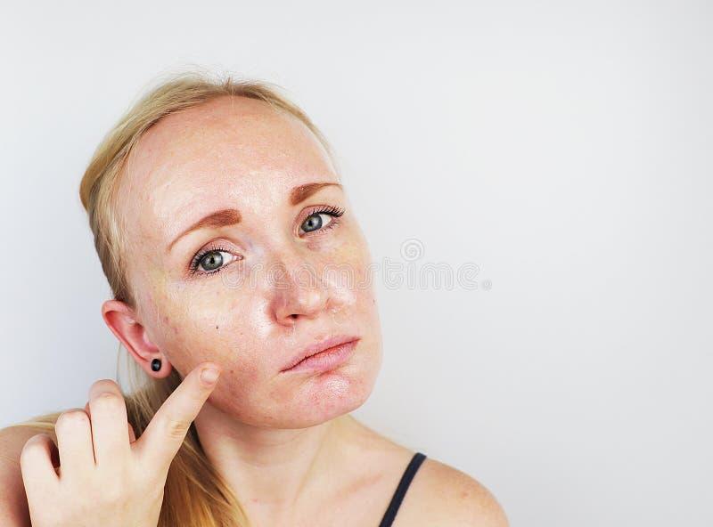 Pele oleosa e do problema Retrato de uma menina loura com acne, pele oleosa e pigmentação fotografia de stock